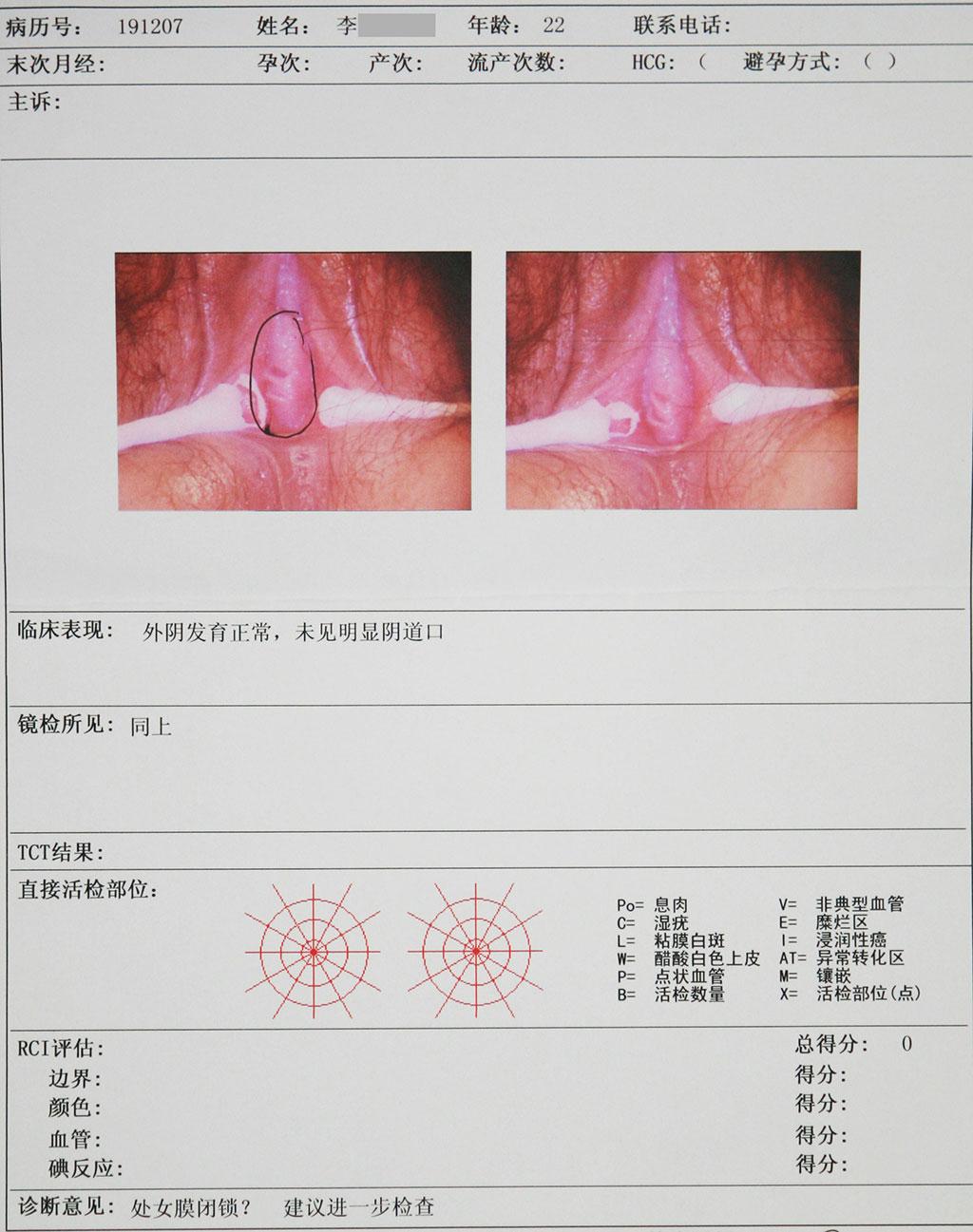 处女膜 妇科检查:外阴毛发分布均匀,可见处女膜痕迹,无阴道无宫颈、子宫,未扪及双侧附件. B超检查:盆腔内肌性回声 诊断:先天性无阴道、始基子宫